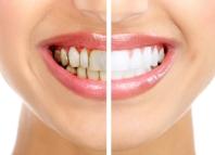 Как отбелить зубы от кофейного налета (пятен кофе)
